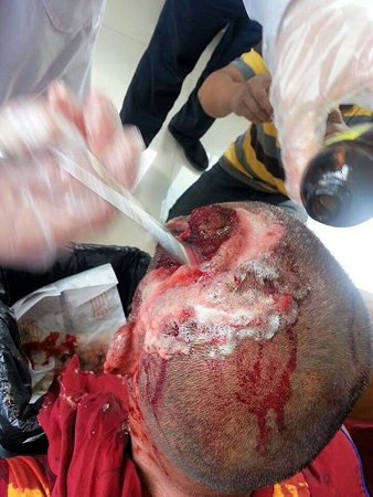 Harrowing Results Of China's Latest Attack On Tibetans