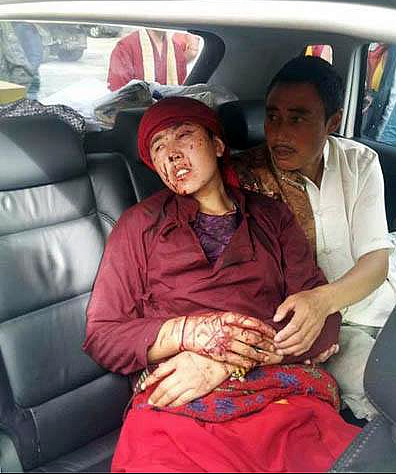 Another Victim of China's Ministry Of Security-Mr. Jangchup Dorjee, Severely Injured July 6, 2013 In Tawu, Kham, Eastern Tibet For Celebrating Birthday Of The Dalai Lama
